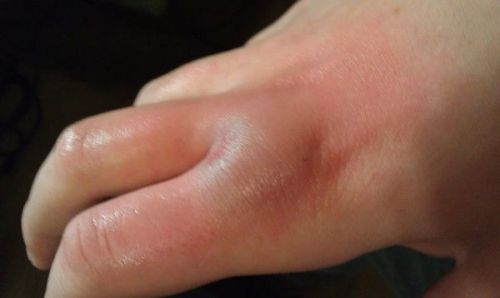 Ушиб пальцев