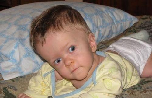 Большая голова у младенца