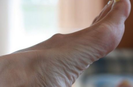 Шишка на ноге
