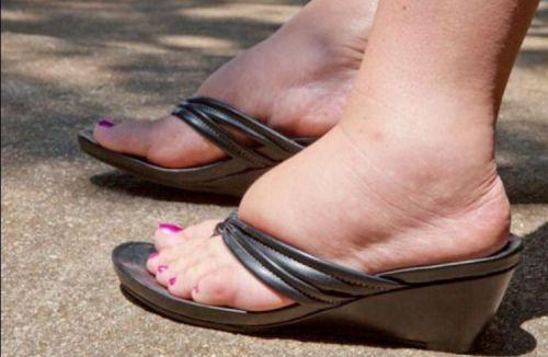 Опухлость ног