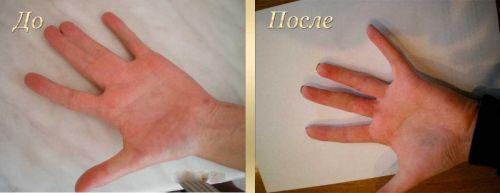 До и после операции на пальцах