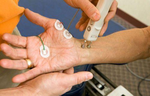 Обследование на ЭМГ с электроимпульсом
