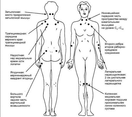Болевые точки при фибромиалгии