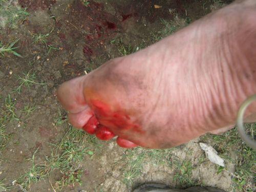 Рана на стопе