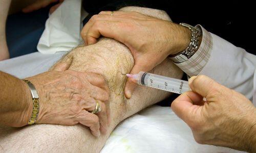 операция на коленном суставе отзывы