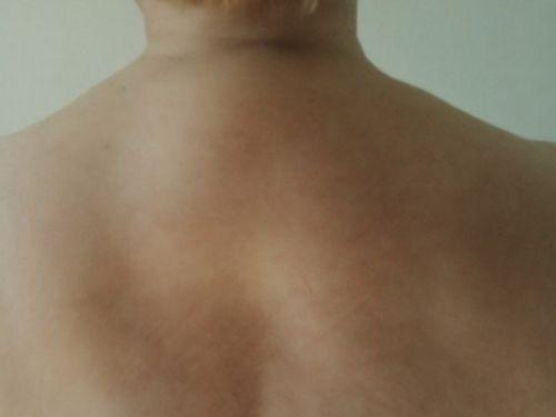 Спина с маленьким горбом