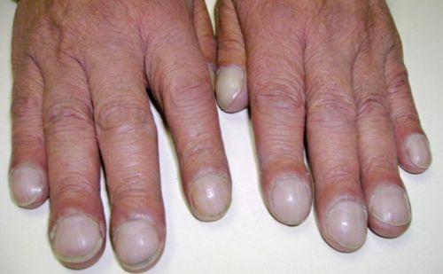 Измененная форма ногтя