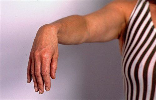 Вытянутая рука