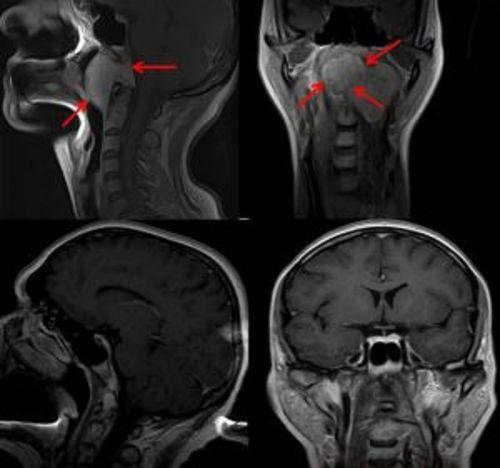 МРТ-снимок головы