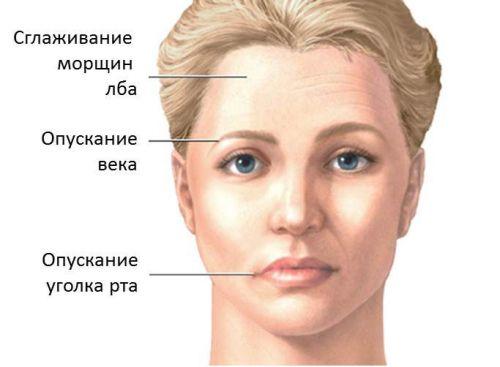 Признаки пареза лица