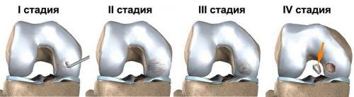 Развитие остеохондрита
