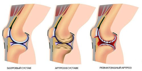 Боль и хруст в колене при сгибании