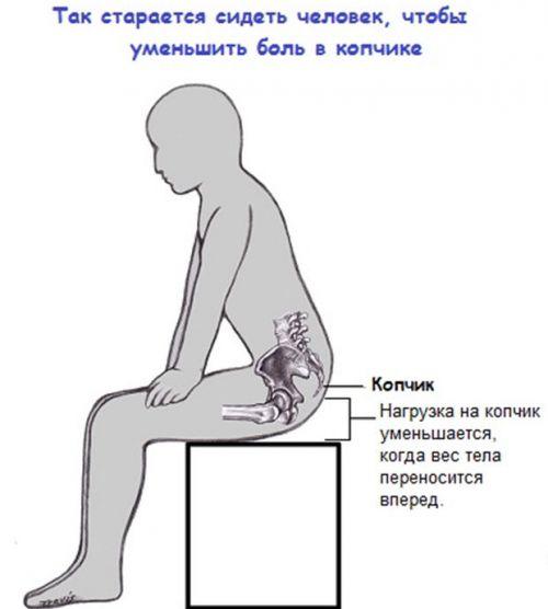 Кокцигодиния симптомы и лечение