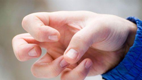 Свело пальцы рук