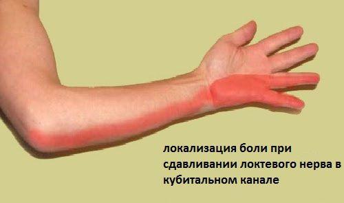 Как снять воспаление локтевого сустава