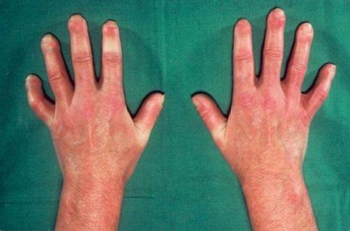 Жесткая кожа на руках