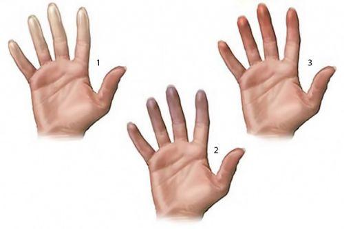 Пальцы при синдроме Рейно