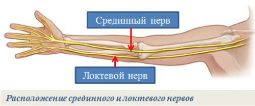 Срединный и локтевой нерв