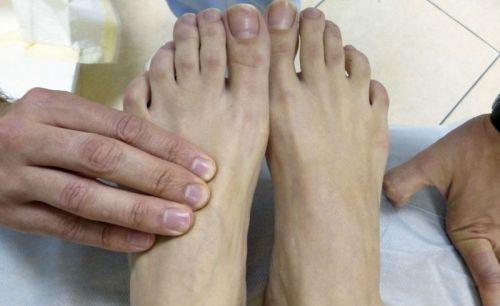 Осмотр ног