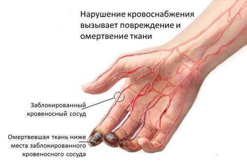 Кровоснабжение руки