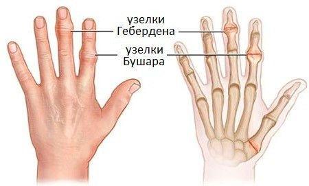Узелки на пальцах рук