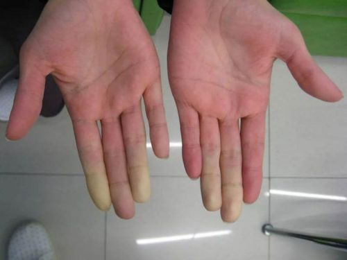 Белые пальцы рук