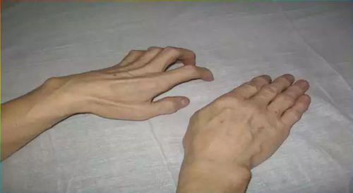 Синдром когтистой кисти