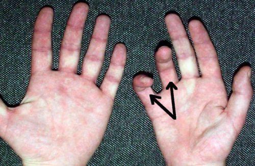 Плохо сгибаются пальцы