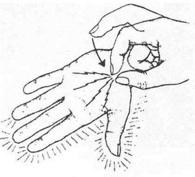 Симптом Тиннеля