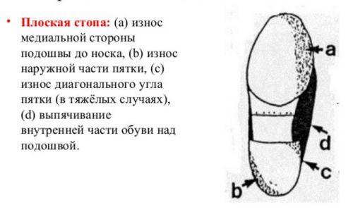 Износ обуви при плоскостопии