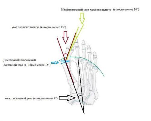 Схема углов между пальцами ноги