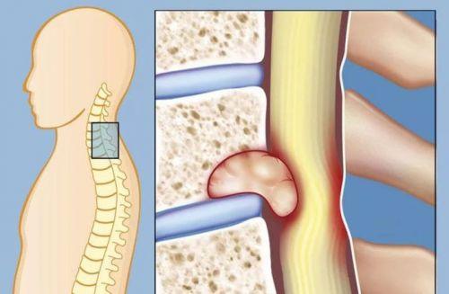 Опухоль возле спинномозгового канала