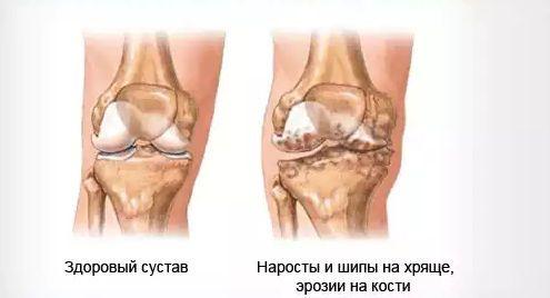 Костно-хрящевые остеофиты