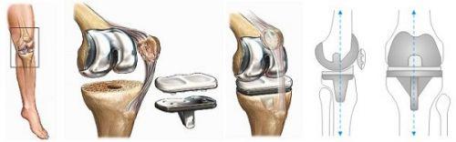 Замещение коленного сустава