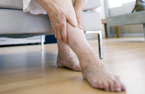 Ноги пожилой женщины