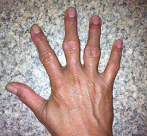 Деформированные суставы пальцев