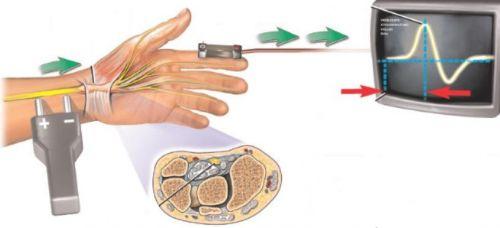 Проведение электронейрографии