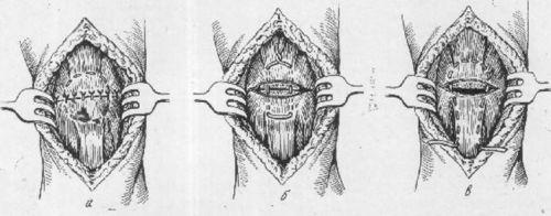 Разрез колена, операция