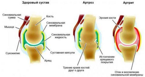 Артроз и артрит сустава