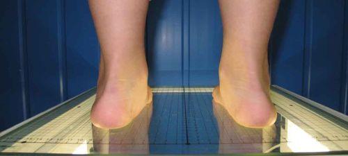 Ноги на плантографе