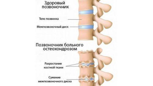 Немеют пальцы рук приревматоидном артрите