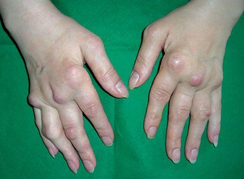 Артрит пальцев