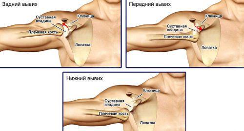 Подвывих плечевого сустава симптомы