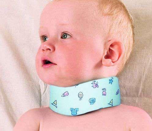 Ротационный подвывих с1 у детей