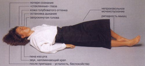 Симптомы эпилепсии