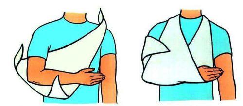 Косыночная повязка на руку