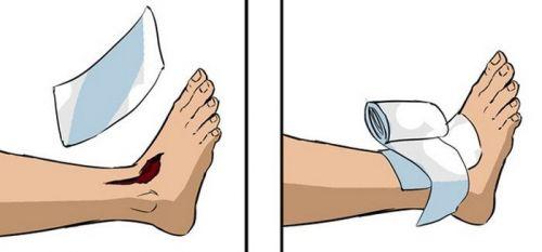 Обработка раны и повязка на голеностоп