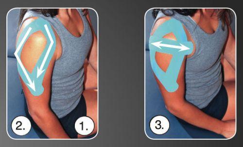 Повязка при вывихе плечевого сустава