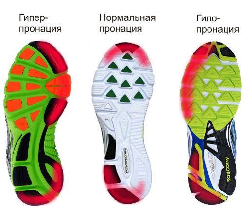 Выбор кроссовок по пронации