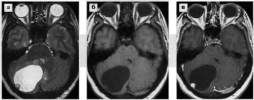 Опухоль мозга на снимке МРТ